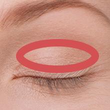 眼瞼下垂症手術アイコン
