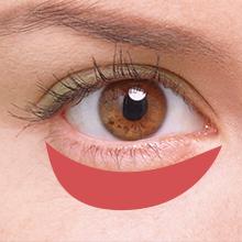目の下のクマ治療アイコン