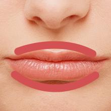 唇をふっくらにする治療アイコン