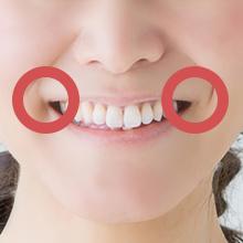 口角を上げる治療、口元のたるみ治療アイコン